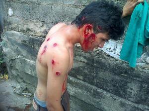 Venezuela: Deshumanización y represión